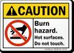 Burn Hazard Do Not Touch Sign