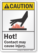 Hot Contact May Cause Injury ANSI Caution Sign
